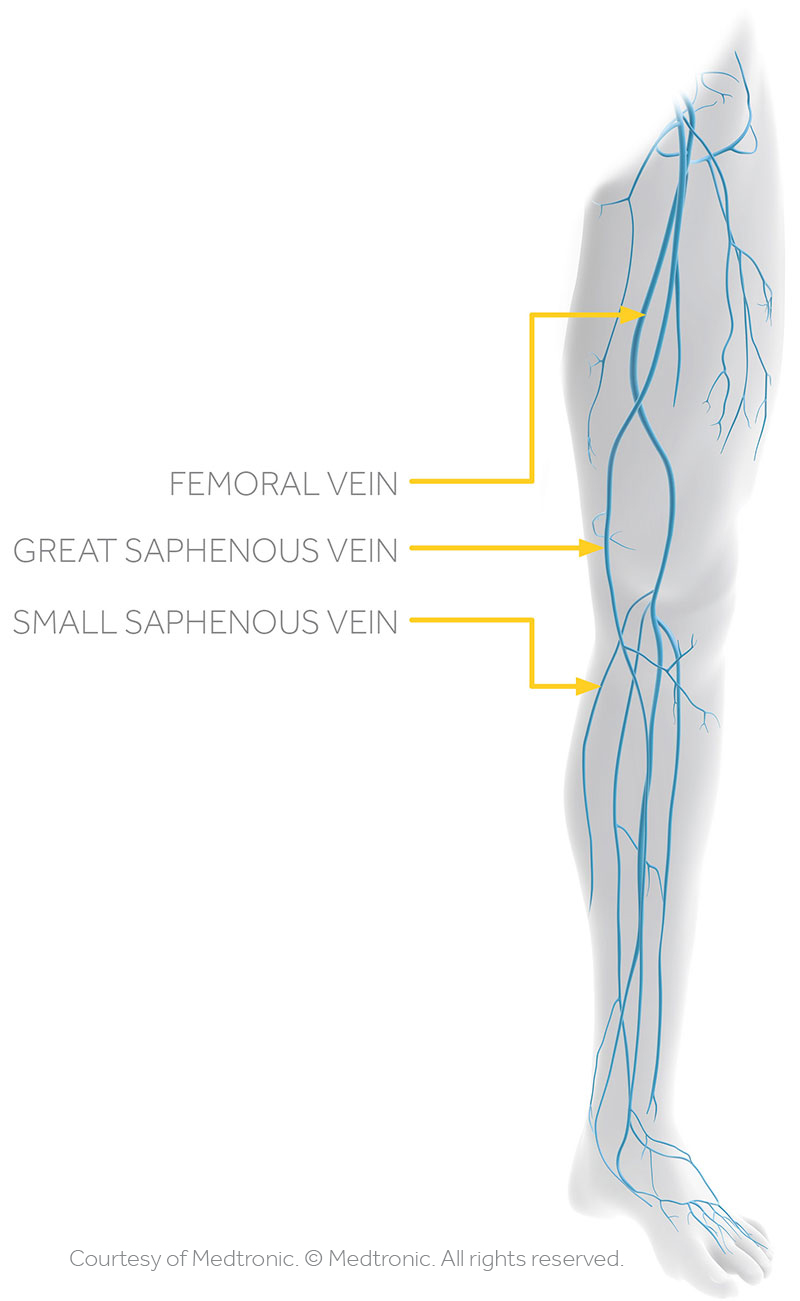 Venous Reflux Study With Ultrasound The Vein Institute Of Blue Bell